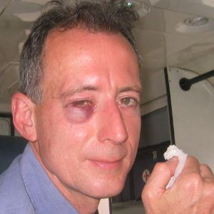 Peter Tatchell attacked